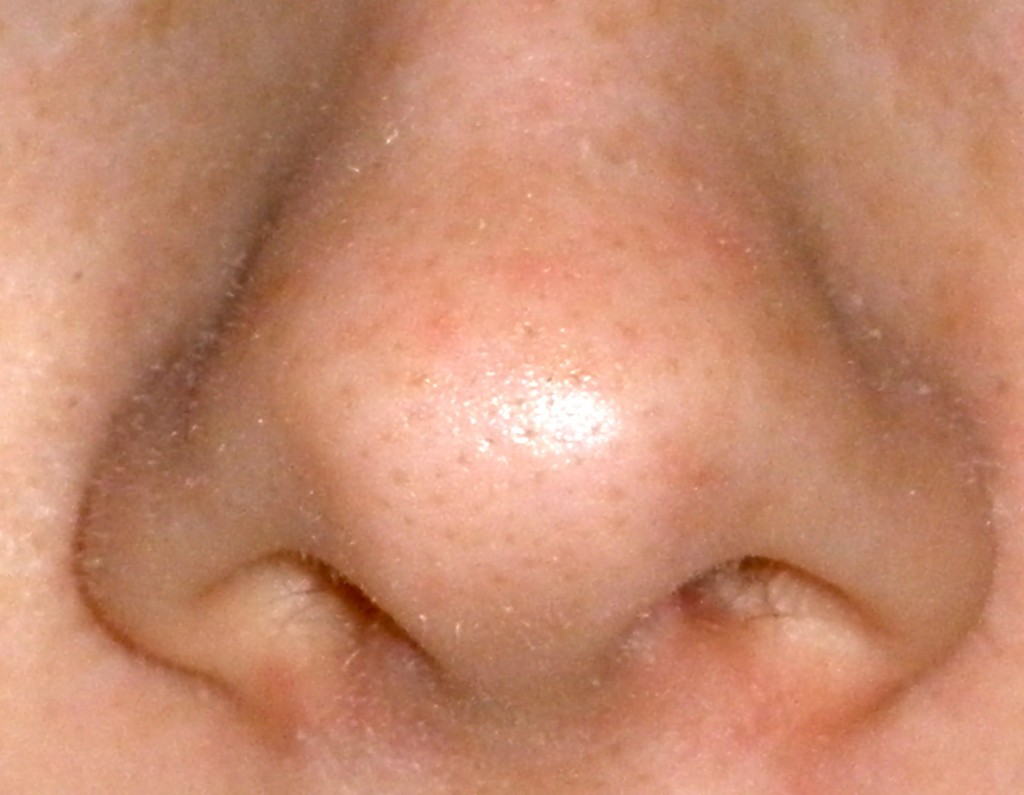 My actual nose, and my actual sebaceous filaments