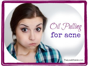Oil Pulling for Acne