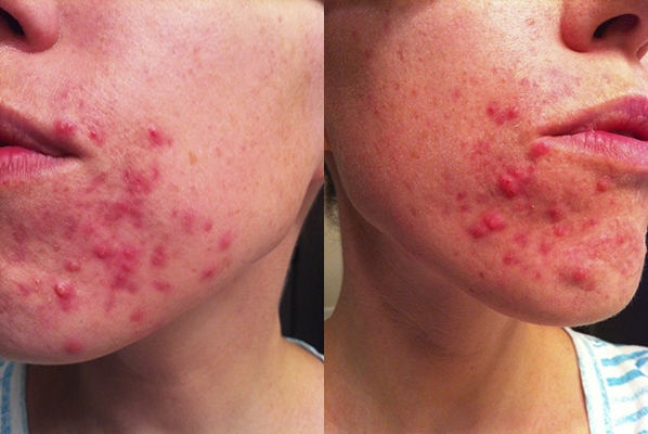 meagan acne story