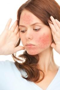 Clogged Pores, Sensitive Red Skin, Rosacea