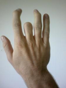 Finger Defect Accutane