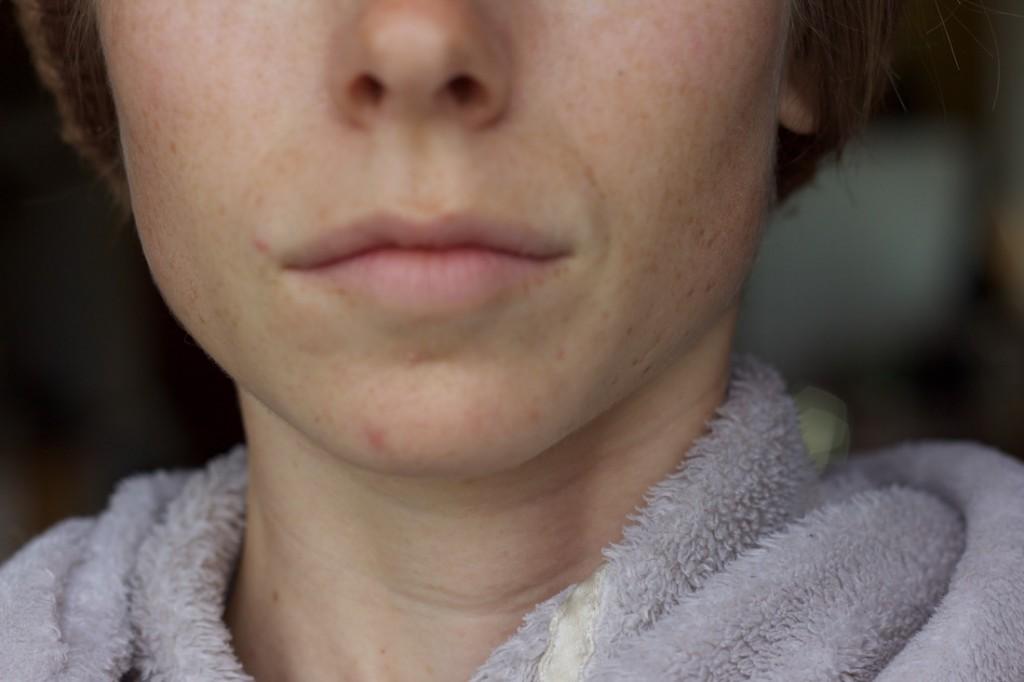 The Love Vitamin acne