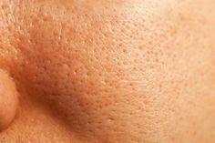 clogged, damaged skin and acne