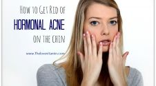 How to Get Rid of Hormonal Acne on the Chin