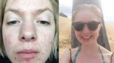 Acne, Healing… And Self-Love? (Celine's Journey)