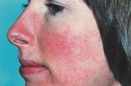 Rosacea Red Nose Natural Treatment