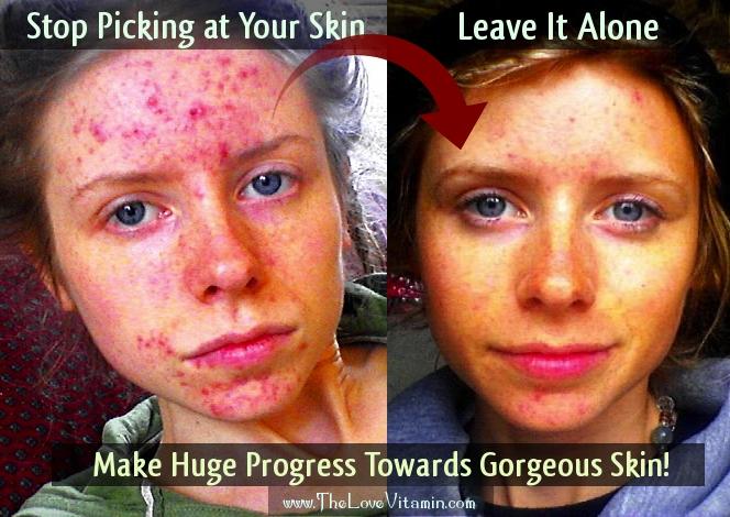 Quit Skin Picking