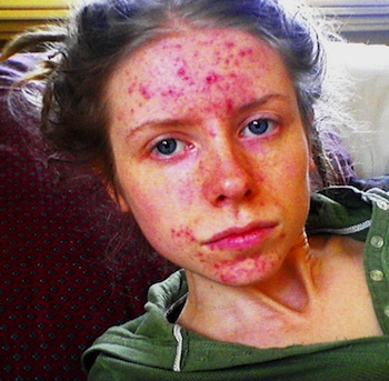 Me with Severe Acne