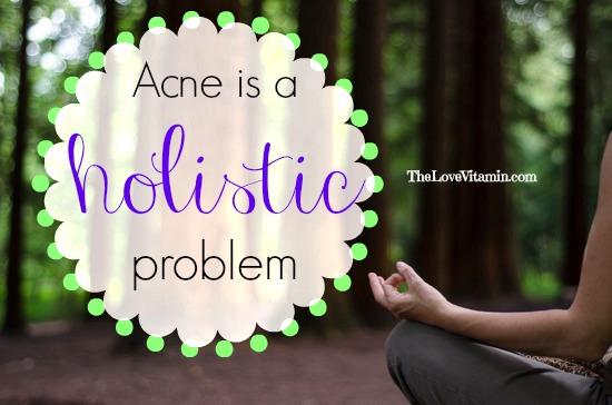 Acne Holistically