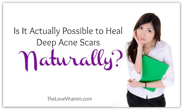 Heal Deep Acne Scars Naturally