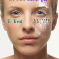 MSM gel for acne scars & hyperpigmentation