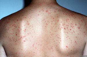 A case of folliculitis
