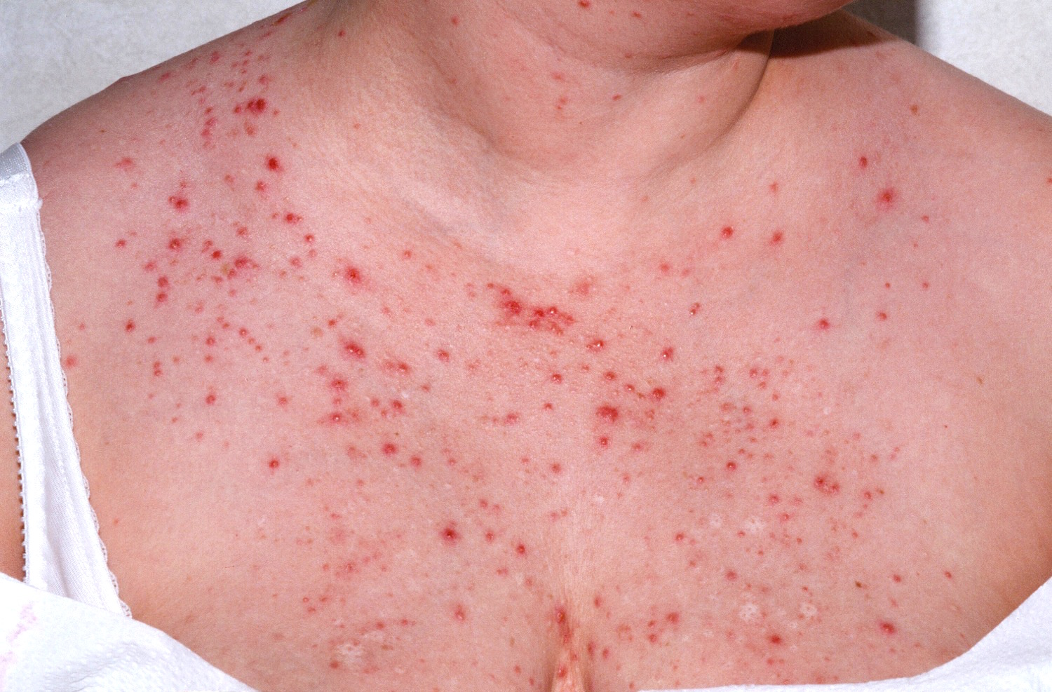 How To Treat Yeast Rash Naturally