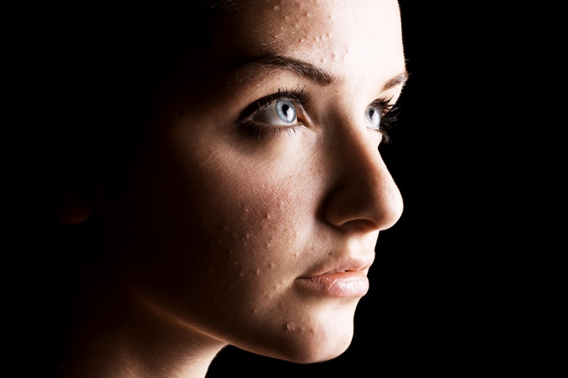 Treat acne caused by high androgens