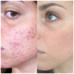 AVA: Quick ways to clear up acne