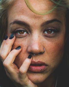 Dermarolling acne scars